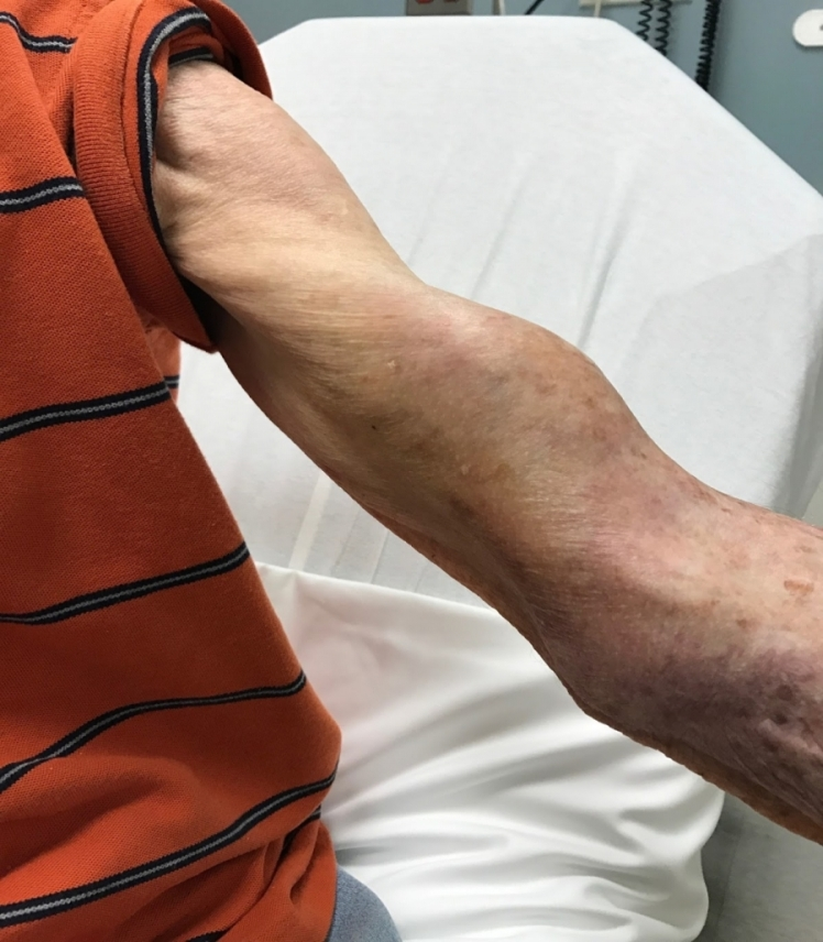 biceps-900x1030