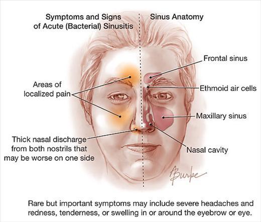 Acute-Sinusitis-JAMA