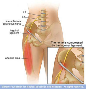 anatomy_lat_cut_fem_nerve-291x300