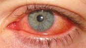 Keratoconjunctivitis_epidemica_2