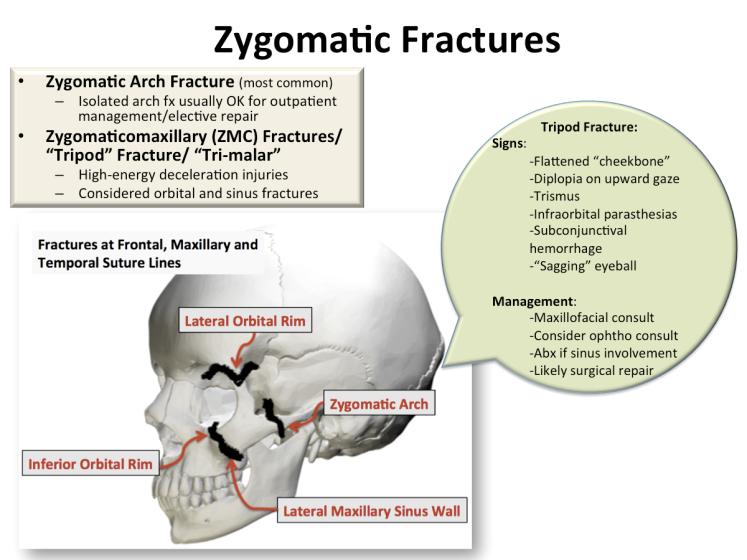 zygomatic fractures_0