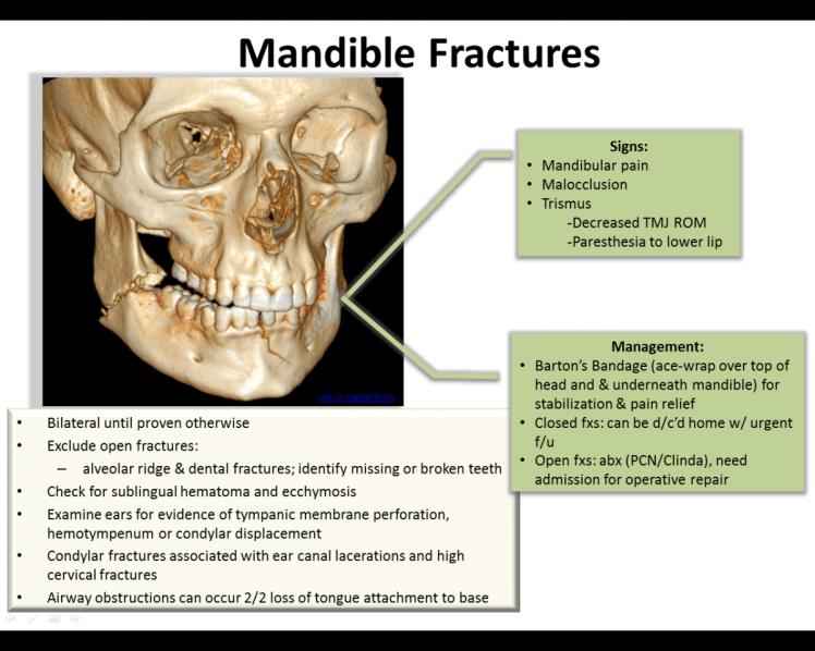 mandible fractures