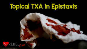 Topical-TXA-in-Epistaxis-300x169