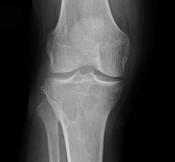 bone tumor1.jpg
