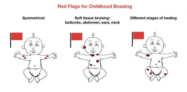Red-Flags-for-Brusing--650x321.png