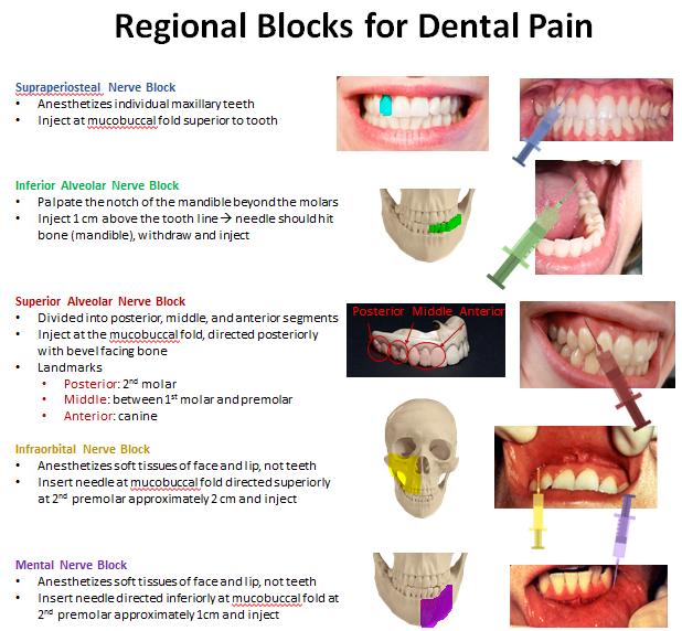 regionalblocks.PNG