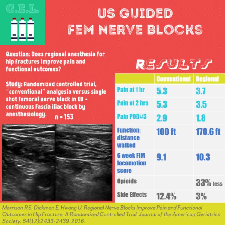 Fem-Nerve-Block-1024x1024.png