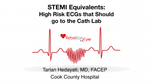 STEMI-Equivalents-300x168.png