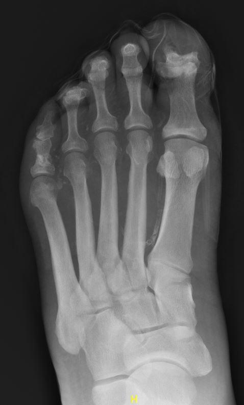 EM daily osteomyelitis1.JPG